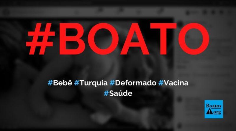 Bebê na Turquia nasce com deformações por causa da vacina mRNA contra Covid-19, diz boato (Foto: Reprodução/Facebook)